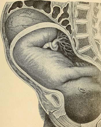 Внематочная беременность - признаки на ранних сроках у женщин