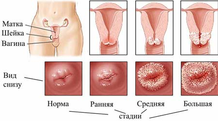 Матка при беременности