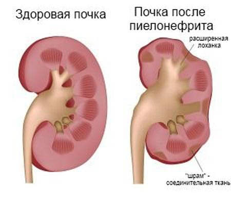 Пиелонефрит при беременности: симптомы хронического, последствия ...