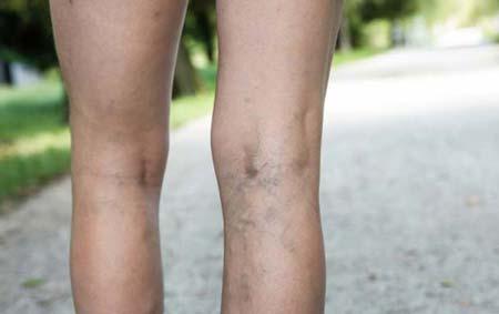 Варикоз при беременности: лечение на ногах, симптомы, причины ...