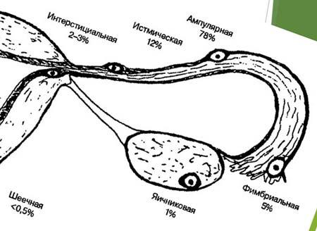 Удаление маточной трубы при внематочной беременности последствия 2