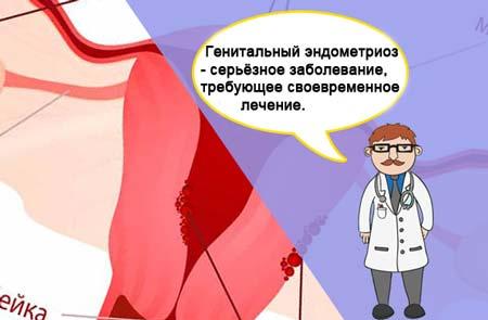 Эндометриоз на половых губах
