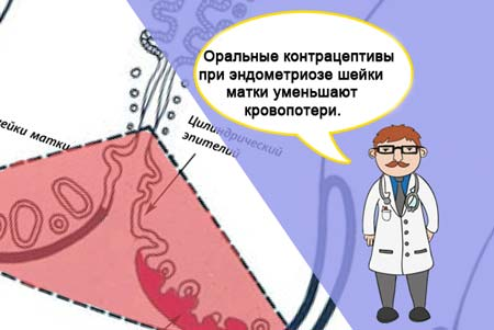 Эндометриоз шейки матки: симптомы и лечение