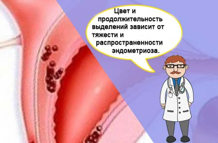 Выделения при лечении эндометриоза