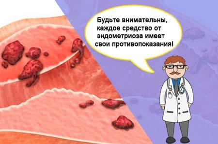 Курс лечения эндометриоза