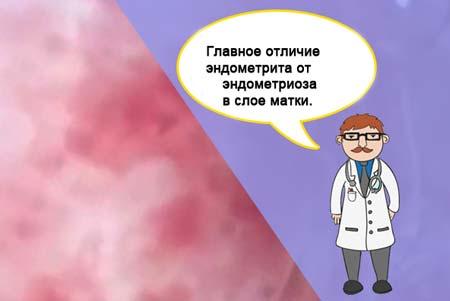 Чем отличается эндометриоз от эндометрита 21