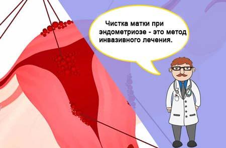 Выскабливание полости матки при эндометриозе