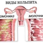 Последствия после кольпита при беременности