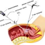 Операция лапароскопии для прерывания внематочной беременности