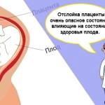 Риски отслойки плаценты в 1 2 3 триместрах