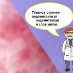 Главные отличия эндометрита от эндометриоза