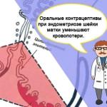 Симптомы и лечение при эндометриозе шейки матки