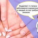 Симптоматика и лечение эндометриоза у женщин после 40 лет