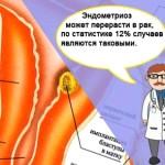 Симптомы и лечение эндометриоза у женщин