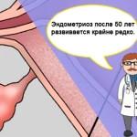 Симптомы и лечение эндометриоза после 50 лет